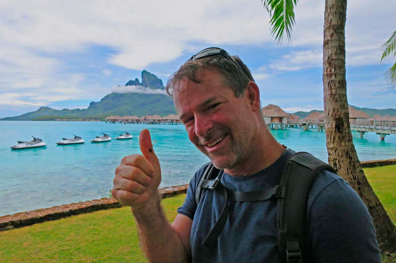 Best worst travel moments 2015: Eric with a fishhook in his thumb